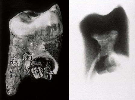 Neanderthal Man tooth x-ray